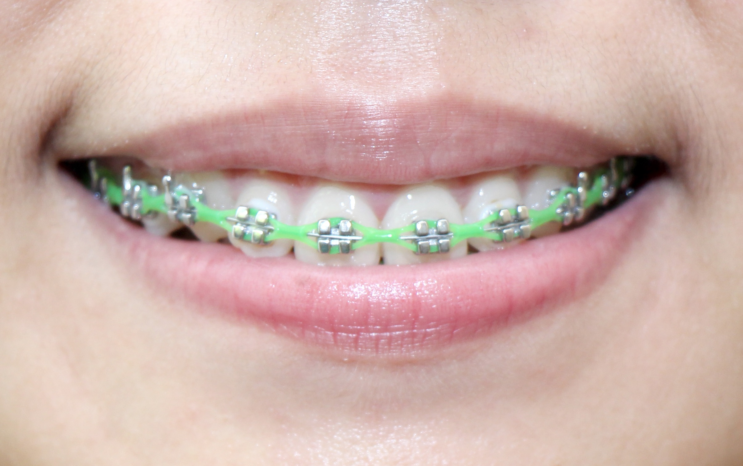 braces child